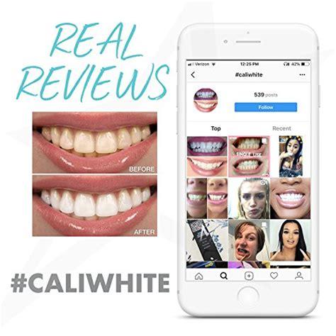 cali white teeth whitening gel refills  carbamide