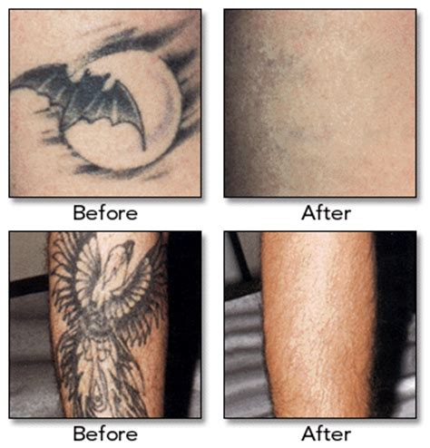 is laser tattoo removal safe or painful