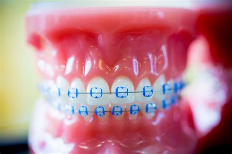 clear braces with color smith family orthodontics clear braces