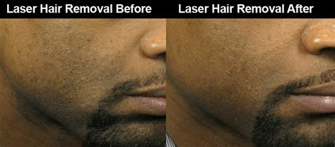 laser hair removal for african americans laser hair removal for dark skin men dark skin laser