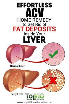 Liver Detox Home Remedy by Liver Help And Advice In Addition To Indicators And