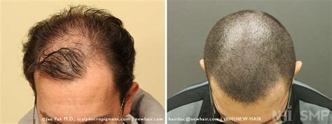 fue haircuts haircut after fue scalp micropigmentation of fue combo