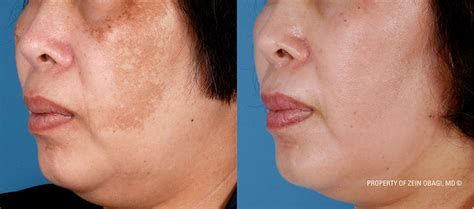 before and after pictures of pigmentation on skin before and after pictures of pigmentation on skin treating