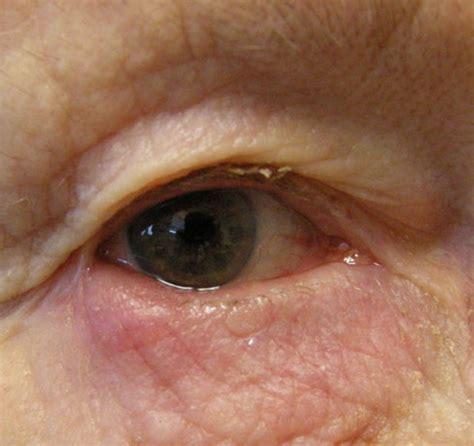 blepharitis images blepharitis التهاب الجفن