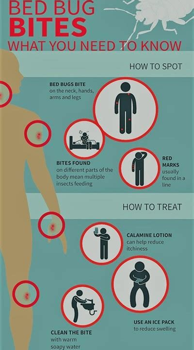 bed bug bites     knowinfographic