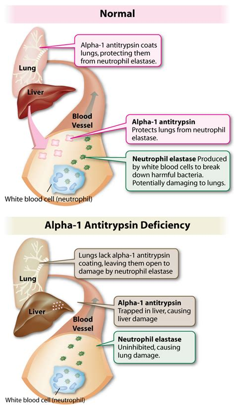 alpha 1 antitrypsin im stuhl pre ib biology genetics