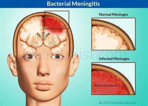 meningitis symptoms  prevention central kasoa
