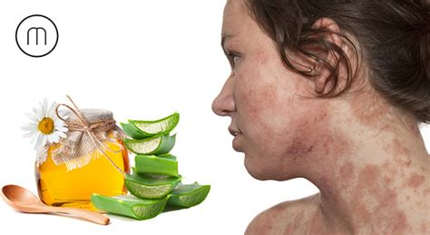 skin allergies home remedies home remedies to cure skin allergy