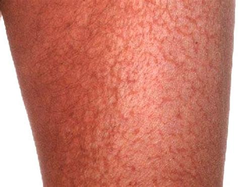 L Picture That Looks Like Legs ichthyosis pictures symptoms causes and treatment
