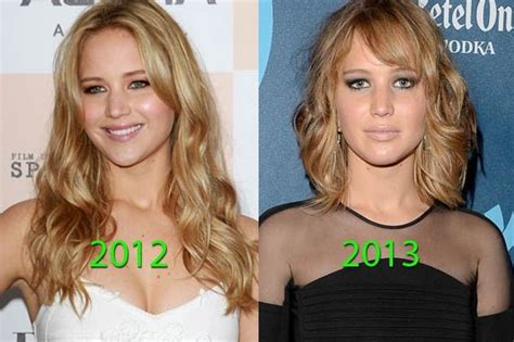 Jennifer Lawrence Before and After Plastic surgery Photos