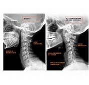 Distorsione Cervicale Trad It Foto Di CMorcone