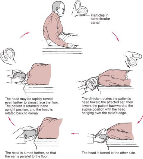vestibular therapy near me dizziness vertigo treatment specific head positions
