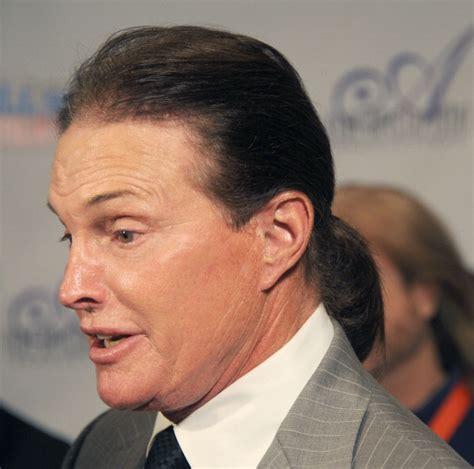 did bruce jenner have hair plugs oscar s hair plugs a do or a don t