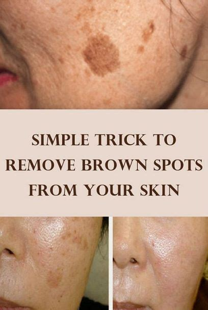 tattoo removal on brown skin simple tips and trick to remove brown spots and clear your