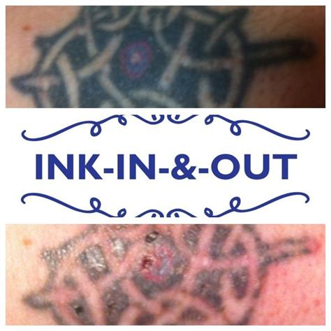 yag laser tattoo removal before and after 1000 ideas about nd yag laser on plastic