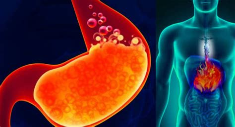 191 problemas de acidez conoce los mejores remedios los mejores consejos y remedios para la acidez estomacal