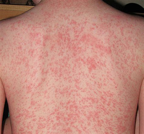 heat rash heat rash dermatological diseases epharmapedia