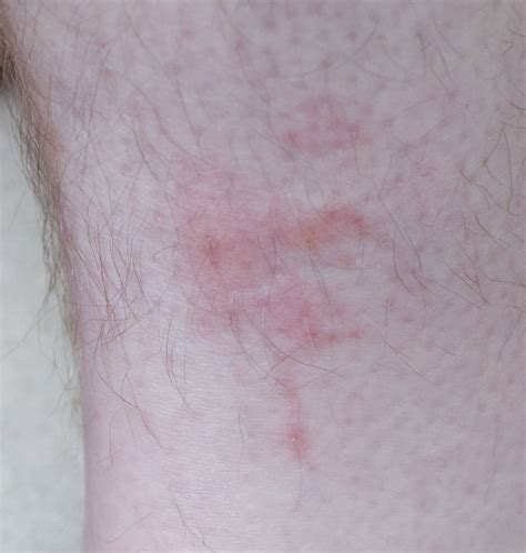 picture of bed bug bites on humans file bedbug bites on human leg 1 jpg