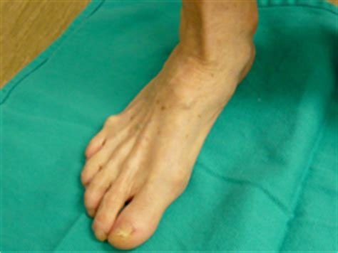 Mba Implant For Flat by Flatfoot Montebello And Irvine Ca Foot Doctor