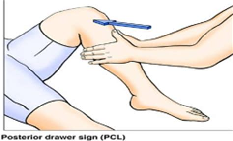 Posterior Drawer Test Knee by Pcl Tear Brisbane Knee And Shoulder Clinic Dr
