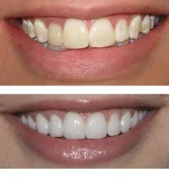Cosmetic Dentist Cosmetic Dentist And You Henderson Cosmetic Dentist