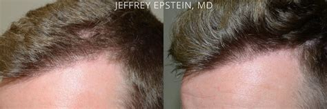 body hair transplant miami fl hair transplants for men before and after photos hair