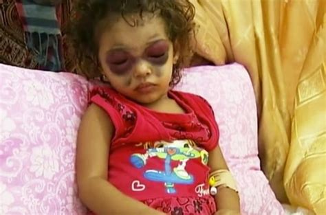 internal bleeding c section brave girl who suffered panda eye bruises during gaza