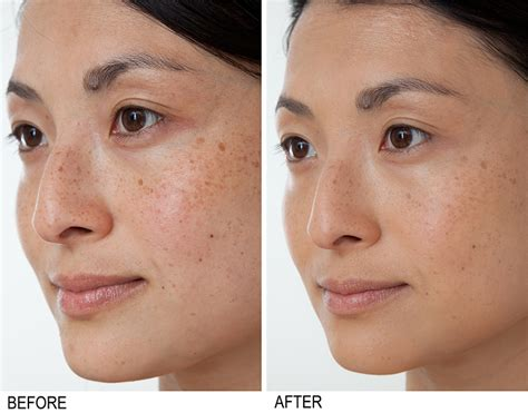 Illuminare Spots Gel Clinical Results Bakel Brightening Serum Before And After