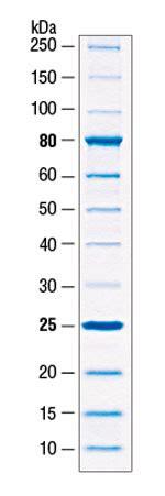 molecular weight math bench sds page ladder gallery