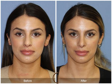 photo gallery before and after cosmetic surgeon in the before after rhinoplasty 87 california cosmetic surgeon
