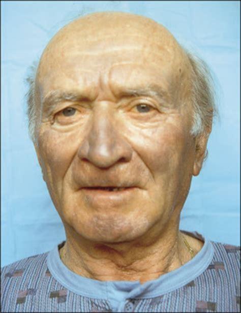 ashen color skin blue gray centrofacial hyperpigmentation photo quiz