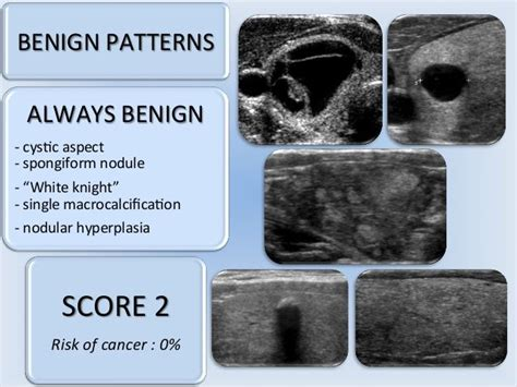 pattern classification ultrasound 406 best images about thyroide on pinterest