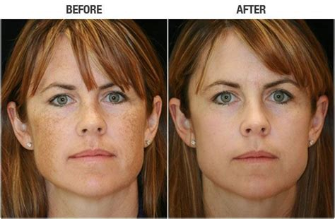 e one ipl session before and after on man and woman face ipl photofacial before and after www skinologymedicalspa