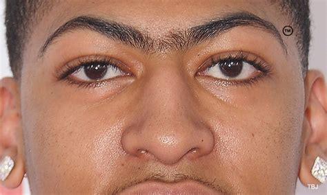 Eyebrow Davis anthony davis eyebrows