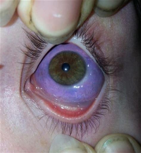 eye tattoo risk eye tattoos risk eye damage lee s summit eye care