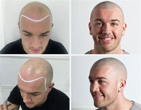 tattooed hair hair scalp micropigmentation
