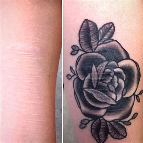 5 tattoos that people at artist helps cover scars with tattoos