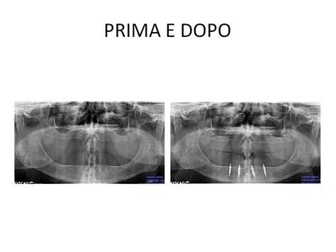 protesi mobile su impianti protesi totale mobile su impianti dott gianluigi fanelli