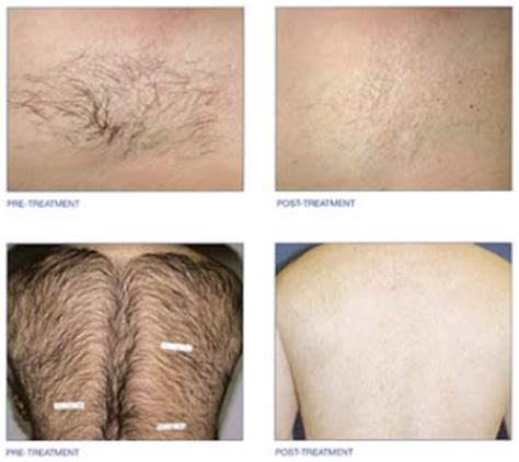permanently remove pubic hair permanent hair removal methods
