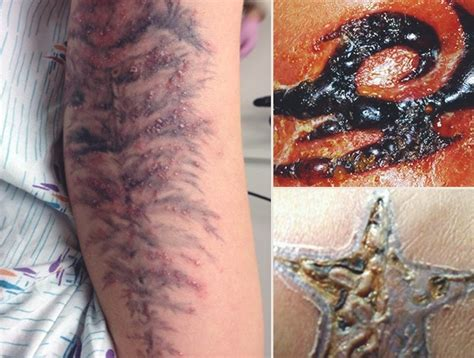 tattoo ink infection tattoo infection 101 how do you know if your new ink is