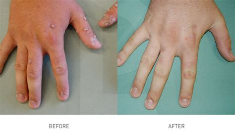 wart removal skinlife