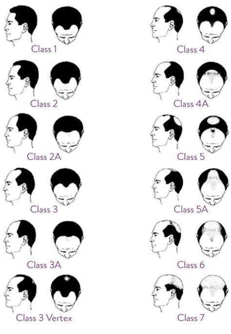 christmas tree pattern baldness male hair loss pattern baldness in men ishrs male hair