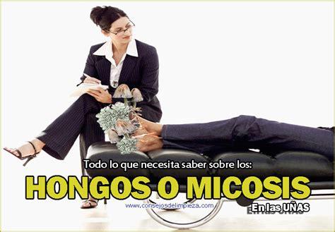 porque salen hongos en las u as hongos o micosis en las u 209 as de los pies consejos de