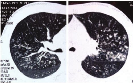chest hrct image from patient with chronic thromboembolic figure 1 thoracic hrct of the patient showing a scattered