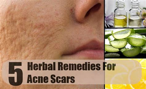 best herbal remedies for acne scars how to treat acne