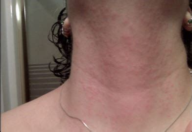 rash on neck rash on neck itchy lupus heat rash back of neck only pictures treatment