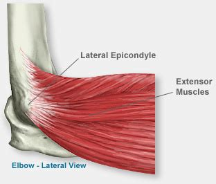 One of the most common elbow problems seen by an orthopedic surgeon