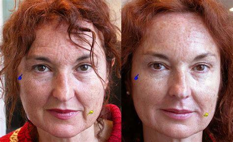 skin on face 53yrs old woman photos aesthetic medecine dr ari assouline s practice antibes