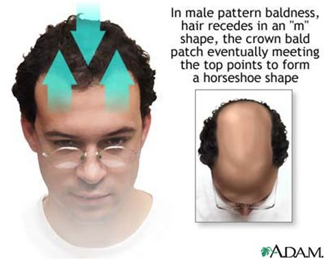 how male pattern baldness works all about ru58841 miracle hair loss compound