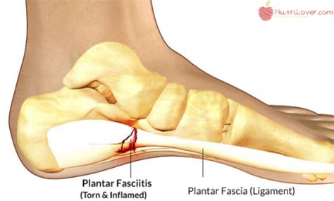 planters fasciitis symptoms how to use a tennis to get rid of plantar fasciitis